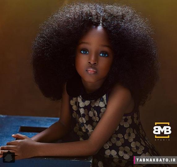 چهره ی شگفت انگیز زیباترین کودک جهان