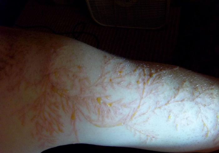 آسیبهای پوستی شگفتانگیز حاصل صاعقهزدگی