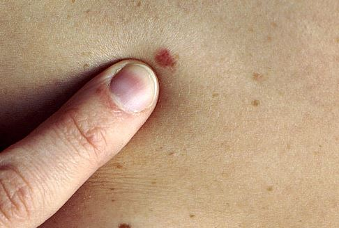 واکسن سرطان پوست کشف شد