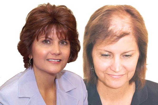 درمان ریزش مو در خانم ها با چند توصیه خانگی!