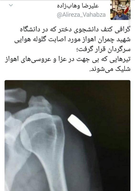 اصابت گلوله سرگردان به کتف دختر دانشجو+عکس