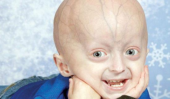 بیماران رانده شده؛ ۱۱ بیماری عجیب و نادر در ایران +عکس