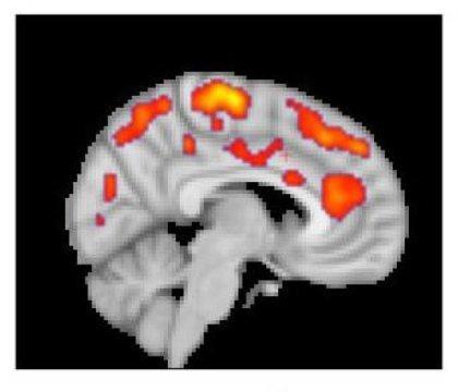 رصد التهابات گسترده در مغز افراد مبتلا به فیبرومیالژیا