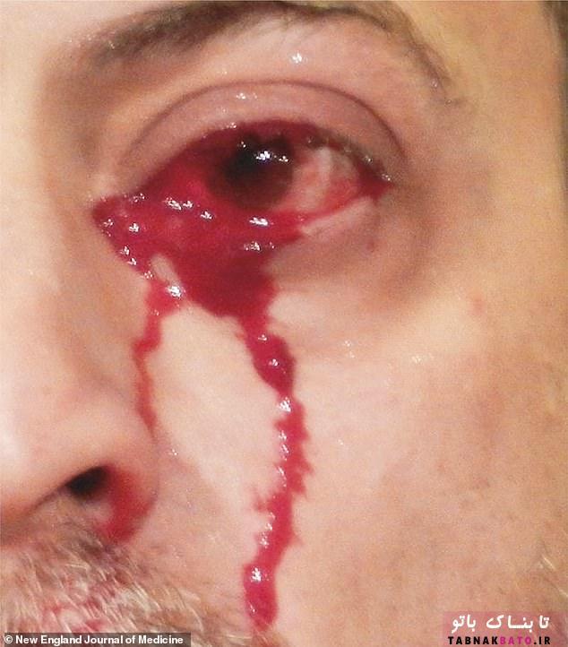 مردی که خون گریه میکند!