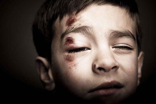 پنهانکاری در کودک آزاری ممنوع!