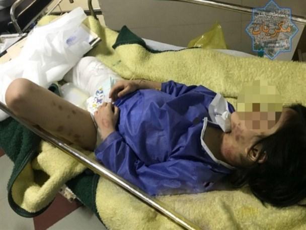 شکنجه وحشیانه دختر 6 ساله توسط مادر سنگدل+عکس