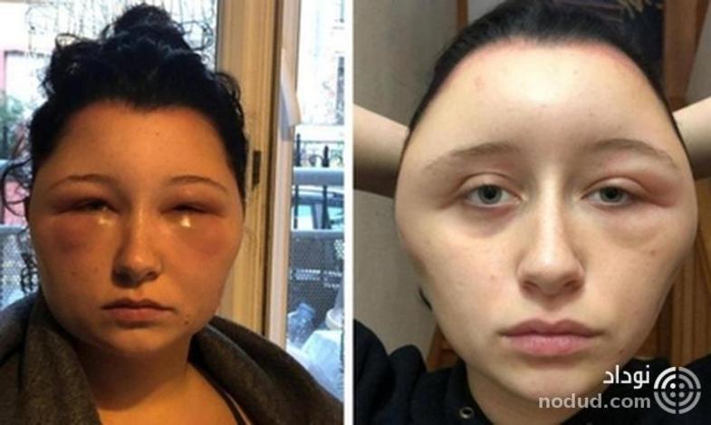 تغییر قیافه وحشتناک دختر جوان پس از مصرف رنگ موی تقلبی +عکس