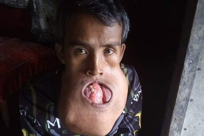 توموری عجیب در دهان مرد فیلیپینی +تصاویرتاریخ انتشار: ۰۷ آذر ۱۳۹۷ - ۱۸:۱۰