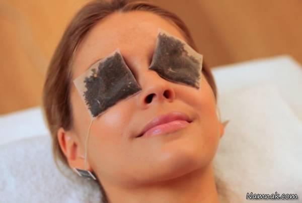 """درمان """"گل مژه"""" چشم با 23 روش معجزه آسای خانگی و طبیعی"""