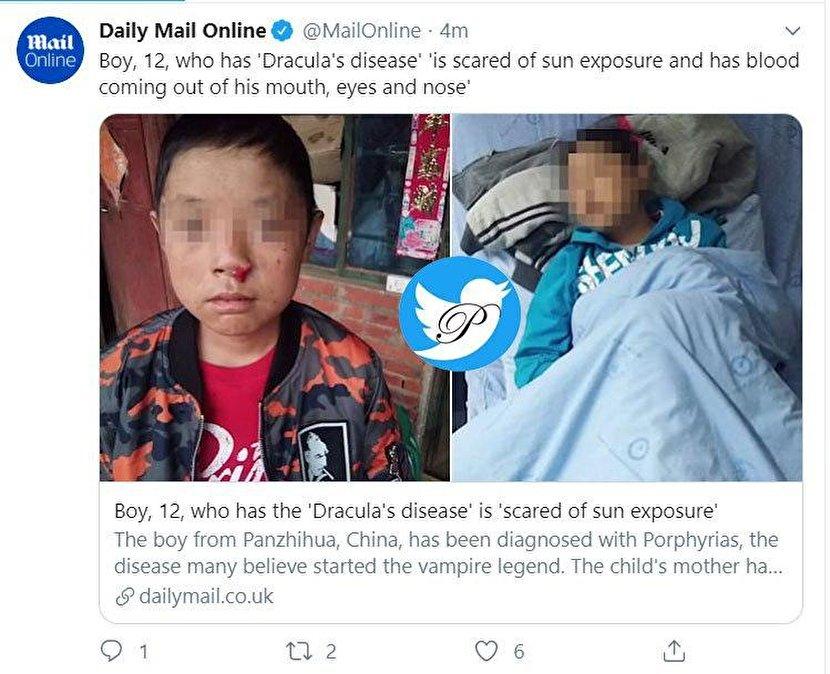 یک اتفاق نادر؛ پسربچه ۱۲ ساله چینی دراکولا شد!؟ +عکس