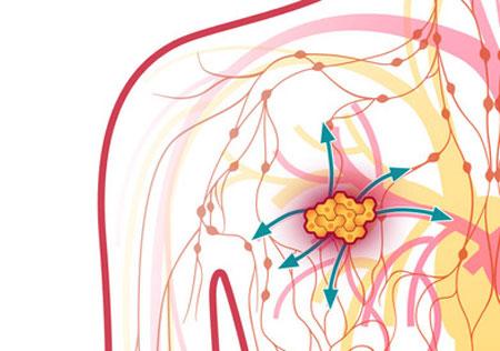 ماموگرافی و هرآنچه باید بدانید