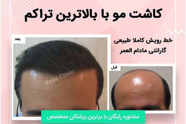 مراکز معتبر کاشت مو و ابرو در تهران