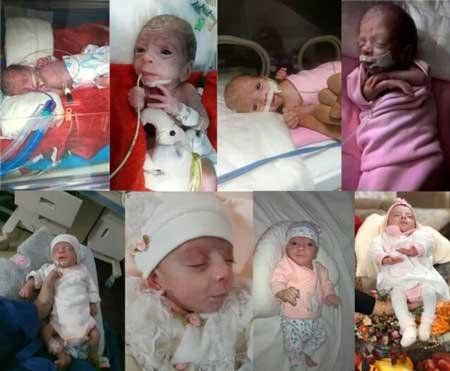 ماجرای تولد نوزاد نیم کیلویی در قم+عکس