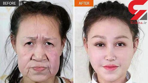 جراحی زیبایی یک پیرزن را به دختری ۱۵ ساله تبدیل کرد +عکس