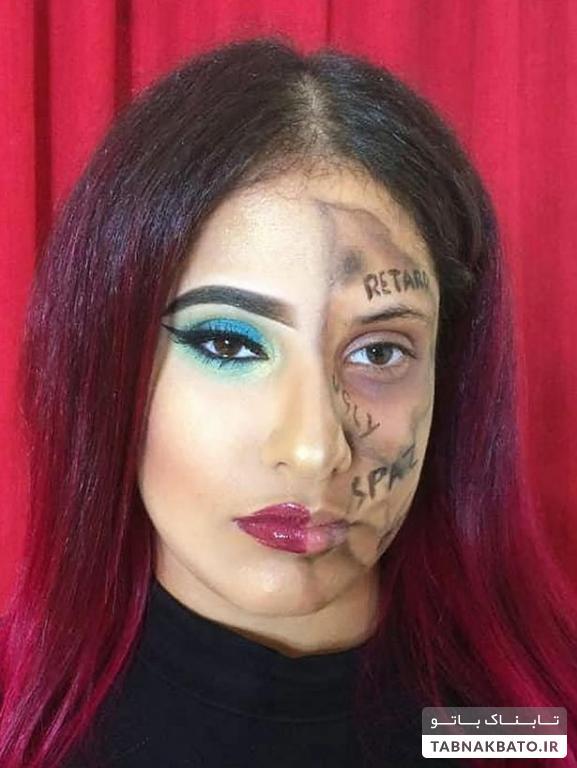 دختر معلولی که کلمات آزار دهنده را روی صورتش نوشت