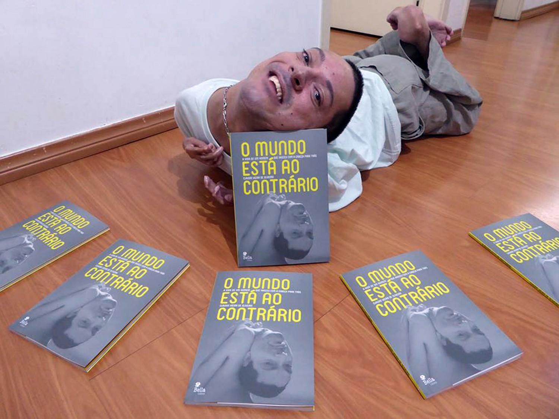 مرد برزیلی که با وجود داشتن سر واژگون، با امیدواری به زندگی و کار حرفهای ادامه میدهد