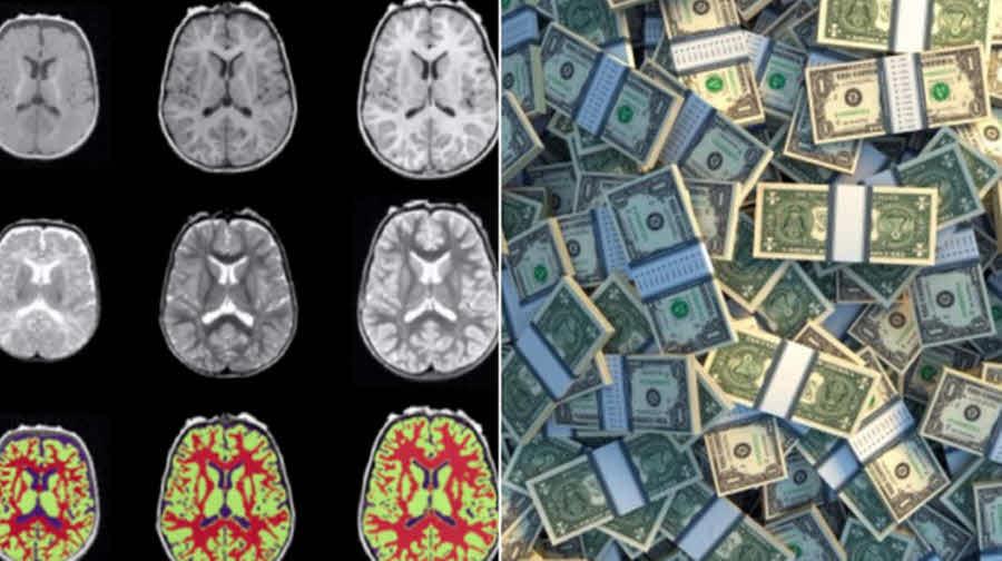 آیا فقر روی مغز آدمهای فقیر تأثیر میگذارد؟!