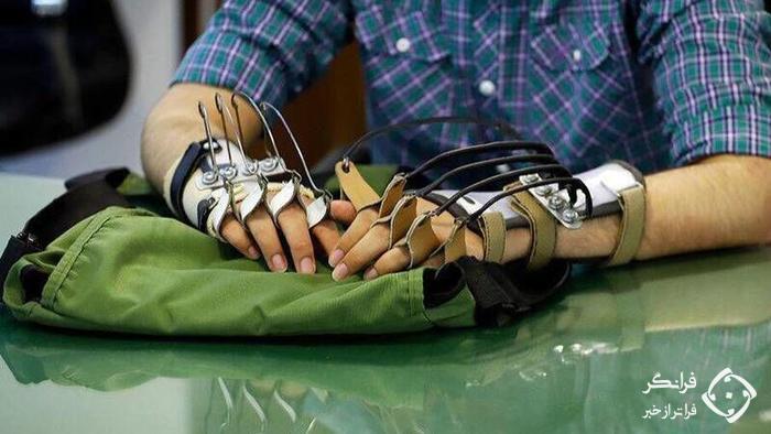 دست اسکلتی یکی از مجروحان حادثه دانشگاه آزاد +عکس