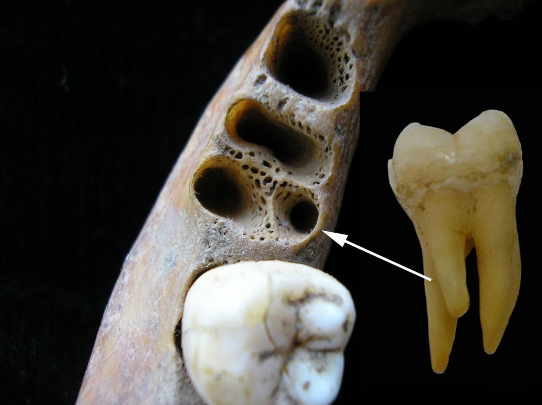 دندان عجیب و قدیمی که سه ریشه دارد+عکس
