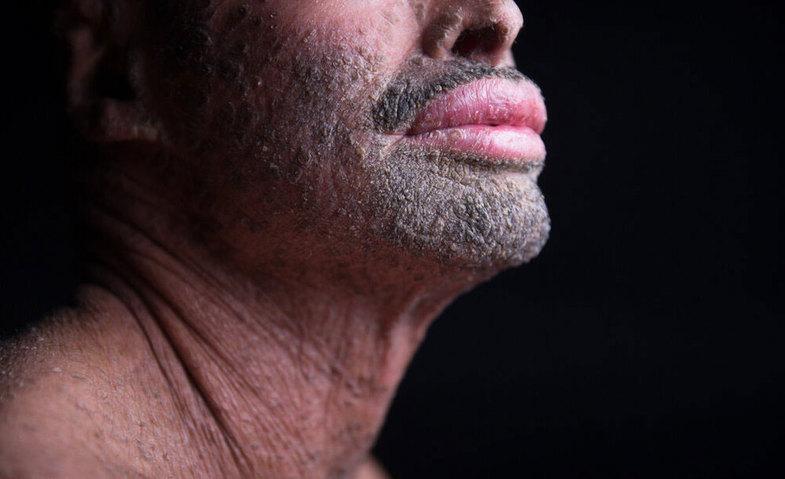تصاویر دردناک از مردی با پوست پولکی در ایران +16