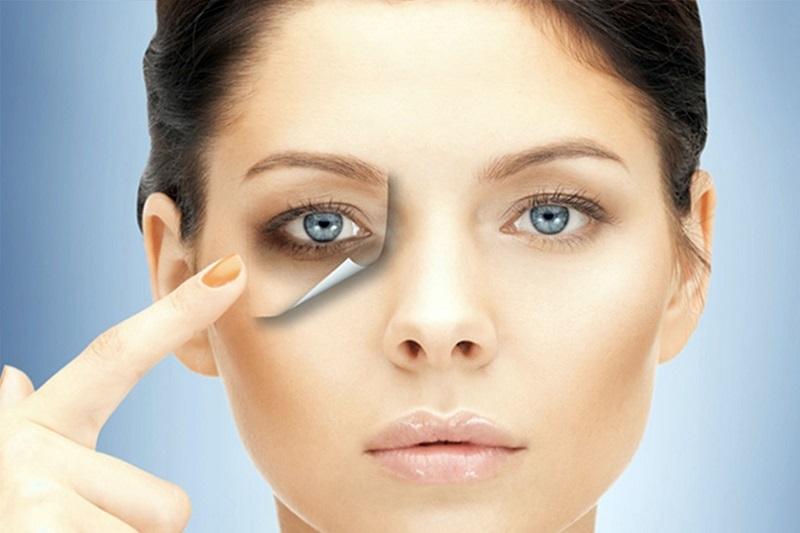 حلقه های تیره دور چشم و راه های درمان آن
