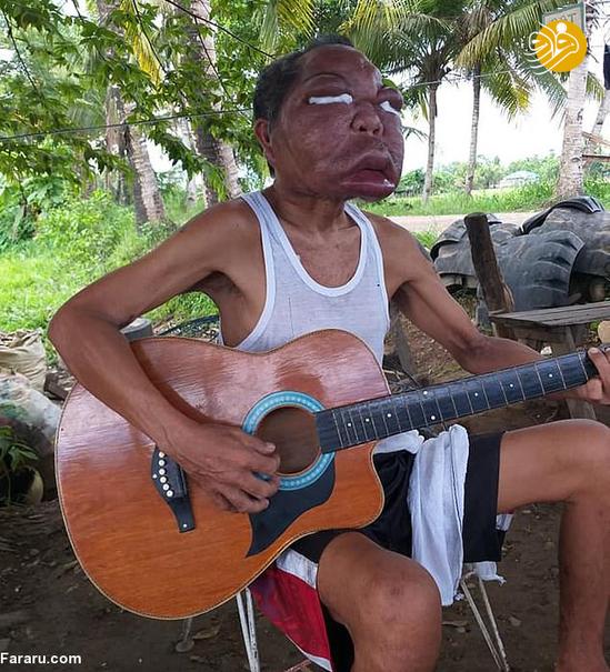 بیماری ناشناخته چهره این مرد را تغییر داد +عکس
