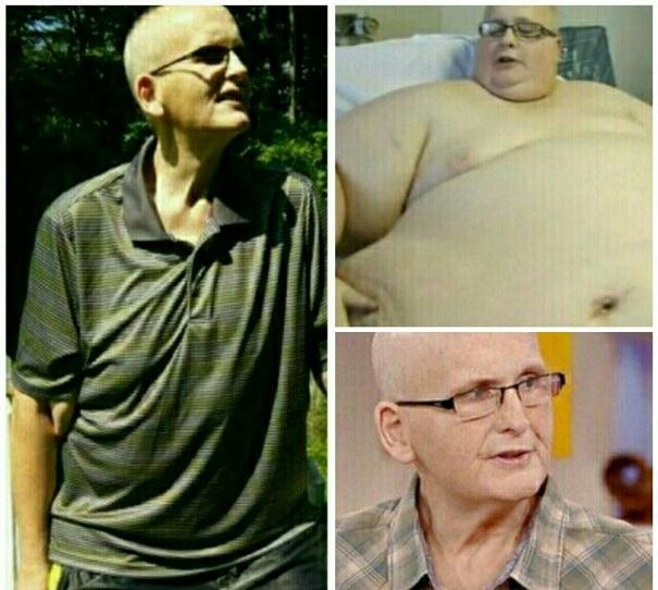 چاق ترین مرد دنیا از 380 کیلو به 89 رسید+عکس