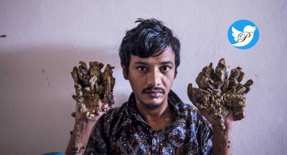 درخواست عجیب یک مرد برای قطع دستانش+عکس