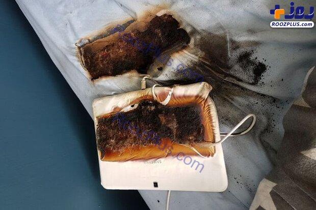 تبلت در حال شارژ رختخواب پسربچه را سوزاند+عکس