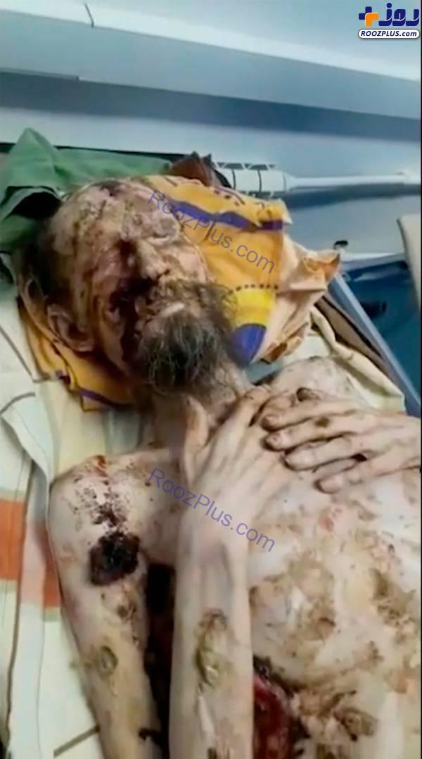 ماجرای اسیر شدنِ مرد روسی در چنگال خرس درنده(16+) +عکس