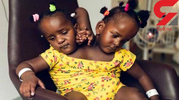 سخت ترین انتخاب برای یک پدر/باید یکی از دخترانش بمیرد! +عکس