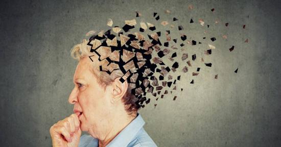 چرت زدن بیش از حد میتواند نشانه آلزایمر باشد