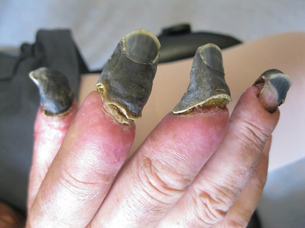 بیماری وحشتناکی که پوست و استخوان را سیاه میکند
