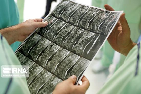 نخستین عمل جراحی بدون بیهوشی مغز در مشهد+عکس