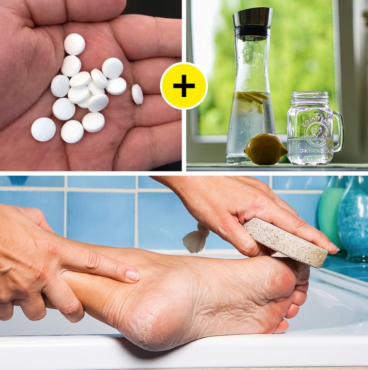 از بین بردن پینه پا در سریعترین زمان به 10 روش خانگی