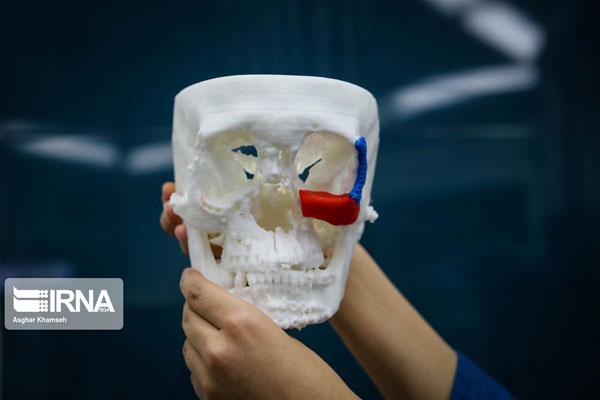 اولین جراحی بازسازی کامل صورت در ایران +عکس