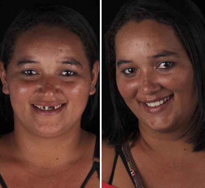 یک دندانپزشک برزیلی که با تاسیس یک NGO، لبخند فقیرترین آدمهای زمین را دوباره زیبا میکند!