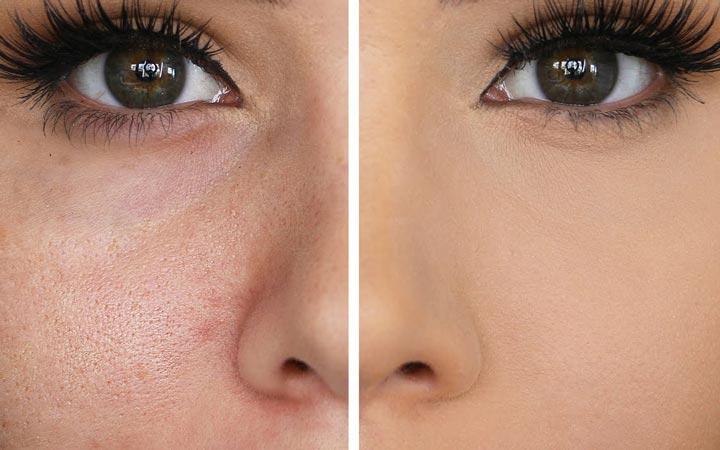 شیوه های کوچک کردن منافذ باز پوست