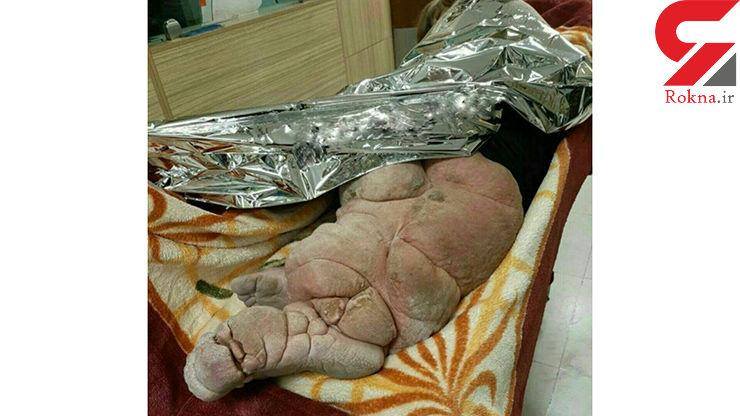 تصویری وحشتناک از یک بیمار تهرانی +عکس