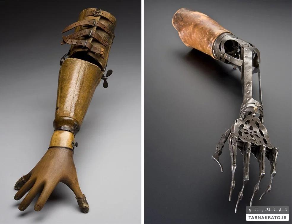 ابزارهای پزشکی قدیمی که با دیدنش از بودن در سال ۲۰۱۹ خوشحال میشوید
