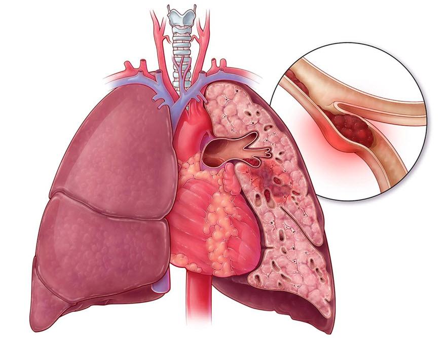 آمبولی ریه چیست؟ علایم، تشخیص و درمان آن به چه صورت است؟