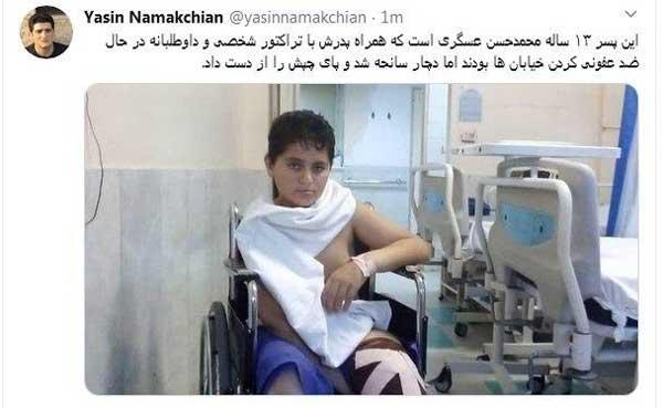 فداکاریِ پسر ۱۳ساله منجر به قطع پایش شد +عکس