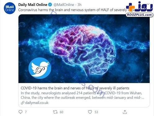 آسیب کرونا به مغز و سیستم عصبی+ عکس
