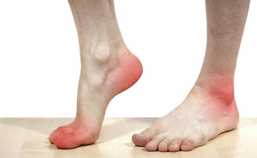 چرا پاهایمان به ظاهر بی دلیل سرد می شوند؟!