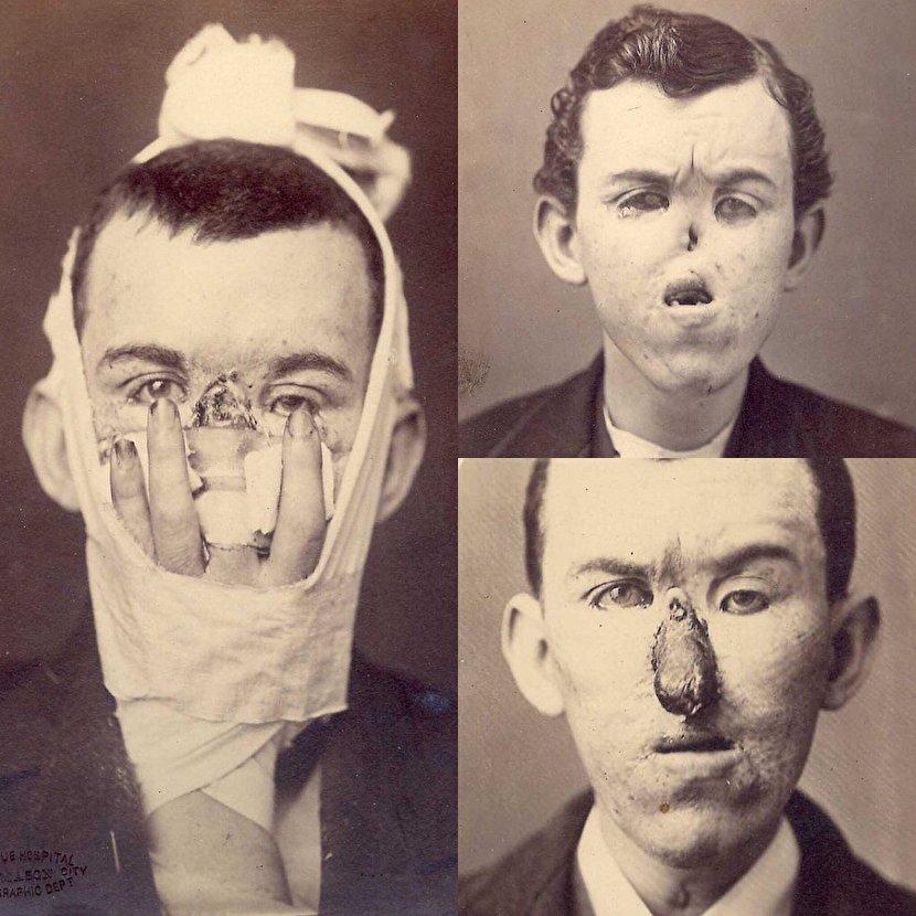 وقتی پزشکان انگشت را جای بینی پیوند زدند+عکس