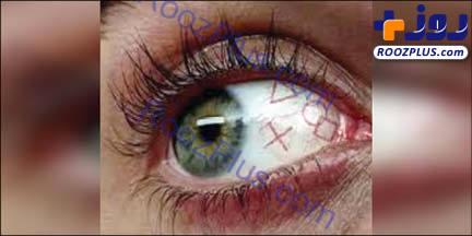 خالکوبی در چشم هم مد شد+عکس