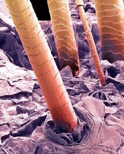 موی انسان زیر میکروسکوپ + عکس