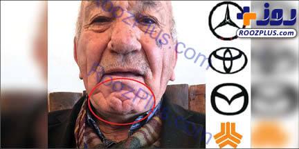 لوگوی بنز روی چانه یک پیرمرد+عکس