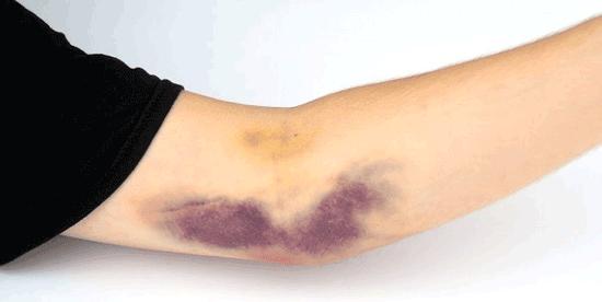 چرا بدن خودبخود کبود میشود؟