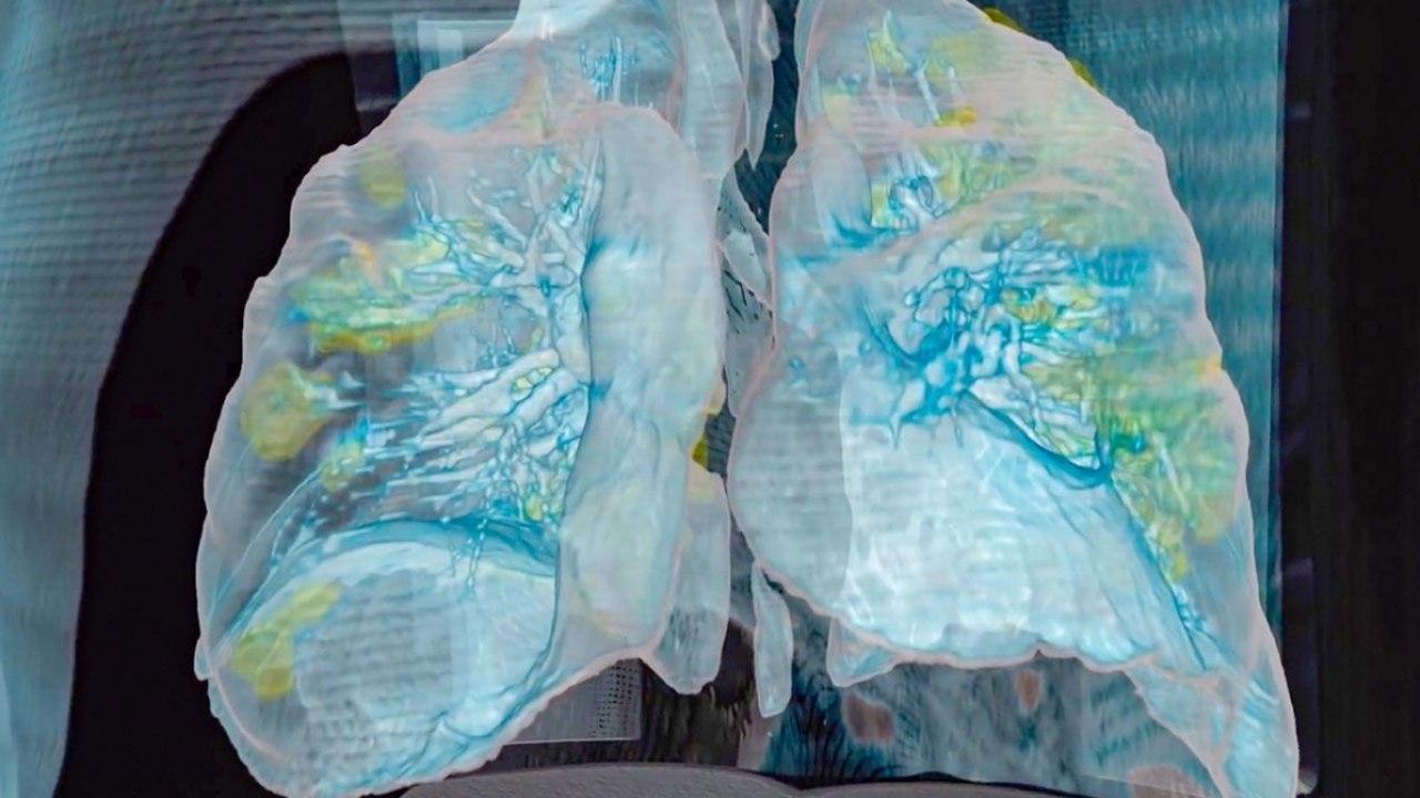 ریه، قلب، کلیه و مغز؛ ویروس کرونا با ارگانهای بدن چه میکند؟